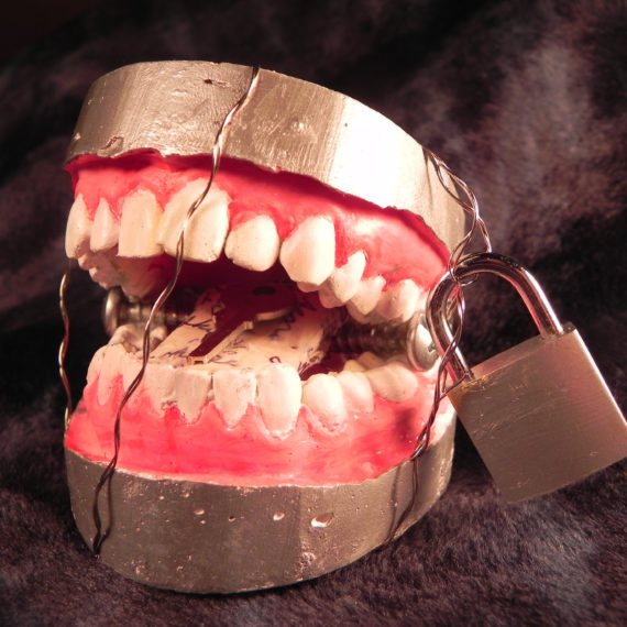 In Tongues - Plaster Dental Cast, Wire, Padlock, Key, Love Letters, Screws, Enamel (Sold)